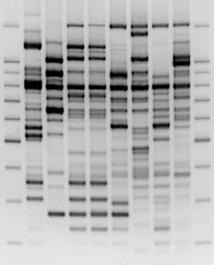 Comparative Dna Analysis Photograph by Zmeel