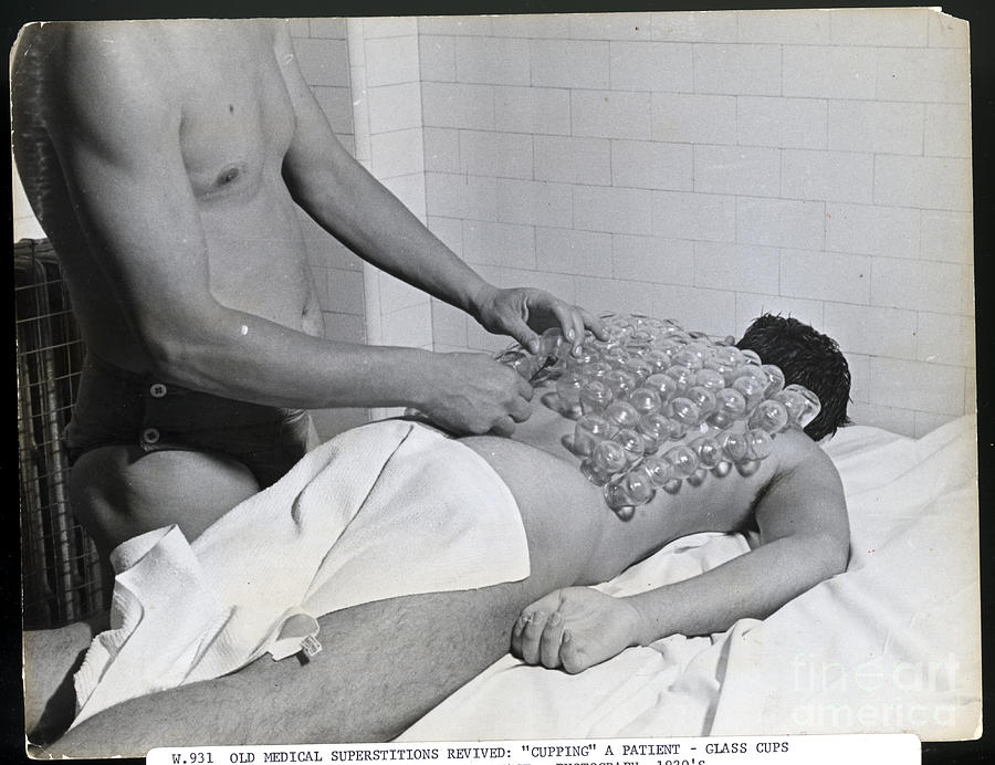 Cupping Patient During 1920s Revival Photograph by Bettmann