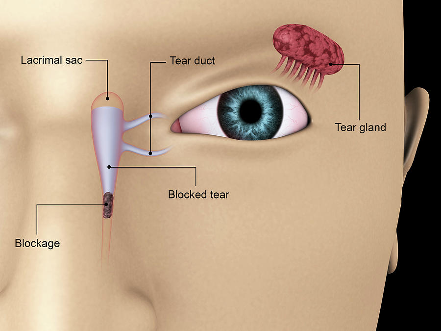 Diagram Illustrating Blocked Tear Ducts Photograph By Stocktrek Images