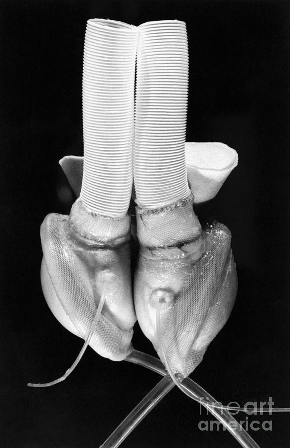 Early Artificial Heart Photograph by Bettmann
