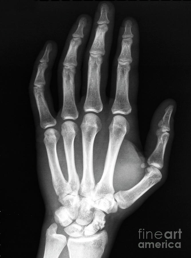 Hand X-ray Navicular Bone Photograph by Urguplu