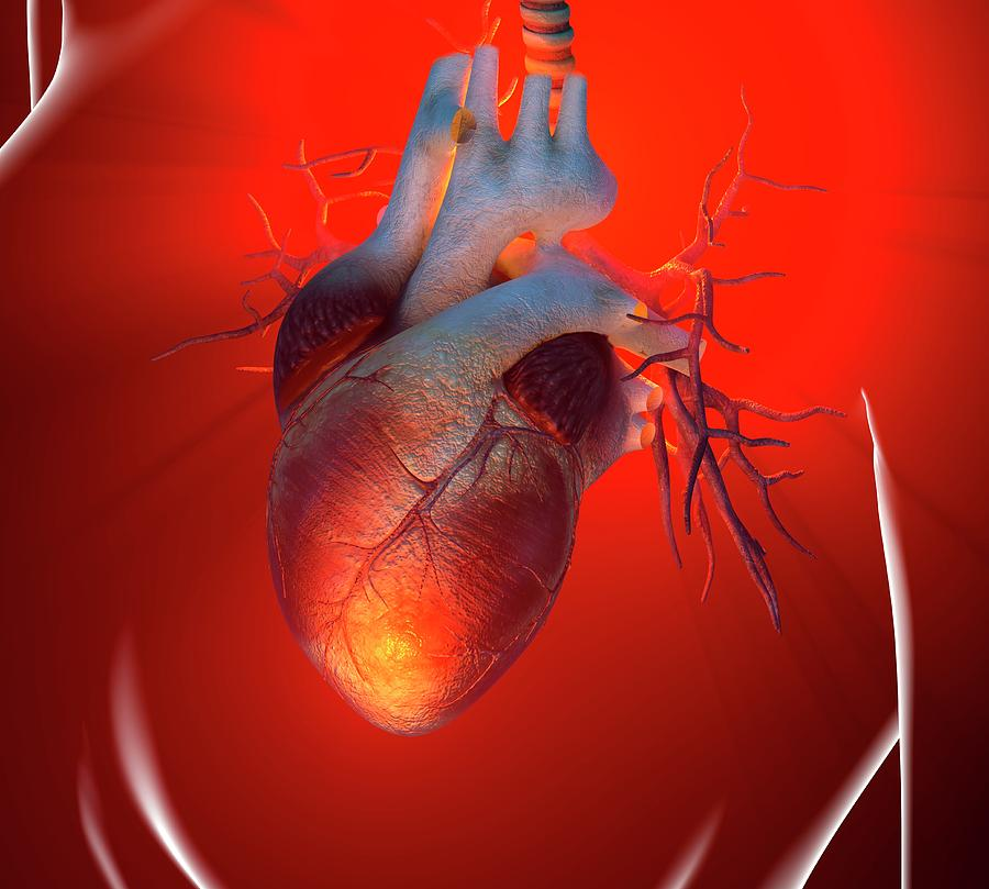 Heart Attack, Conceptual Artwork Digital Art by Science Photo Library - Roger Harris