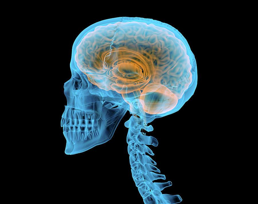 Human Skull With Brain, X-ray Effect Photograph by Leonello Calvetti
