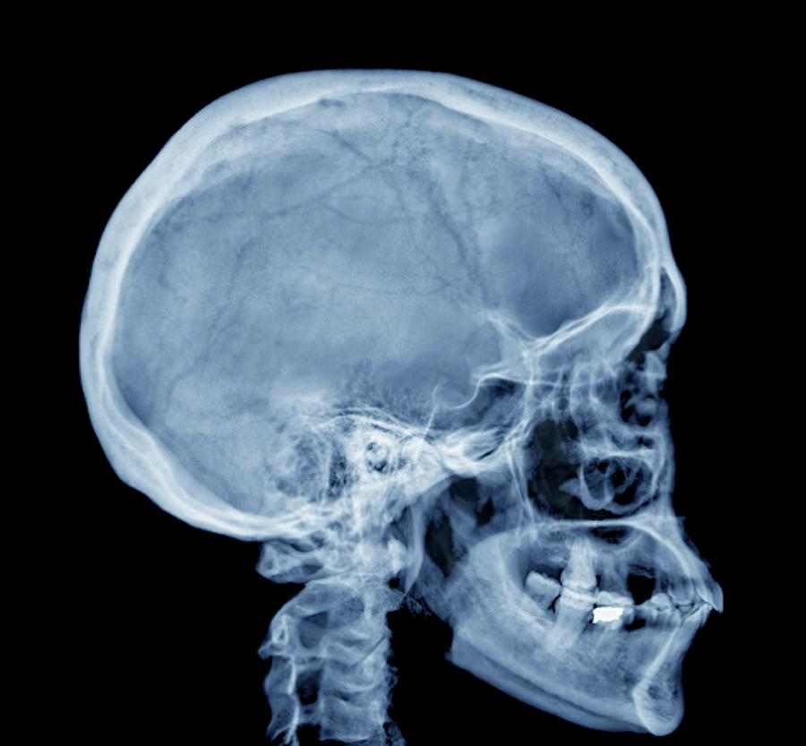 Normal Skull, X-ray Photograph by Zephyr