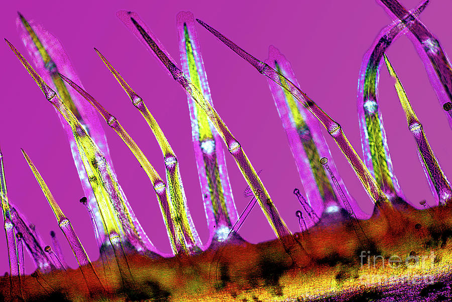 Stachys Sylvatica Photograph - Plant Stem Trichomes by Dr Keith Wheeler/science Photo Library