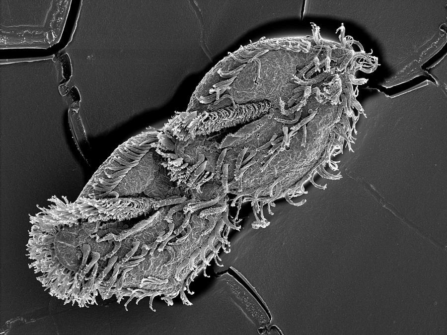 Basal Body Photograph - Sem Of Tetmemena Pustulata Dividing Cell by Aaron Bell