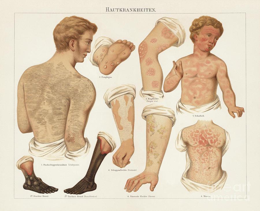Skin Diseases, Chromolitograph Digital Art by Zu 09