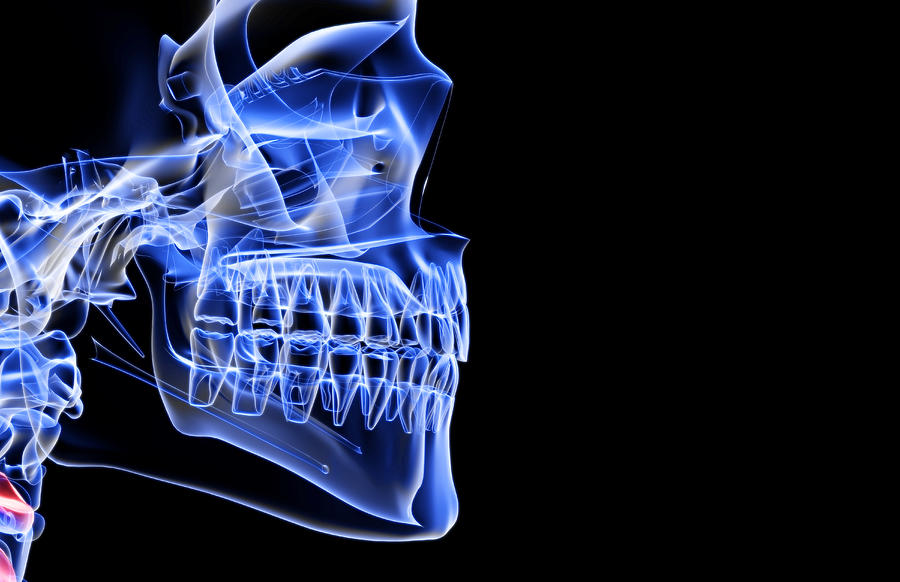 The Bones Of The Jaw Digital Art by Medicalrf.com