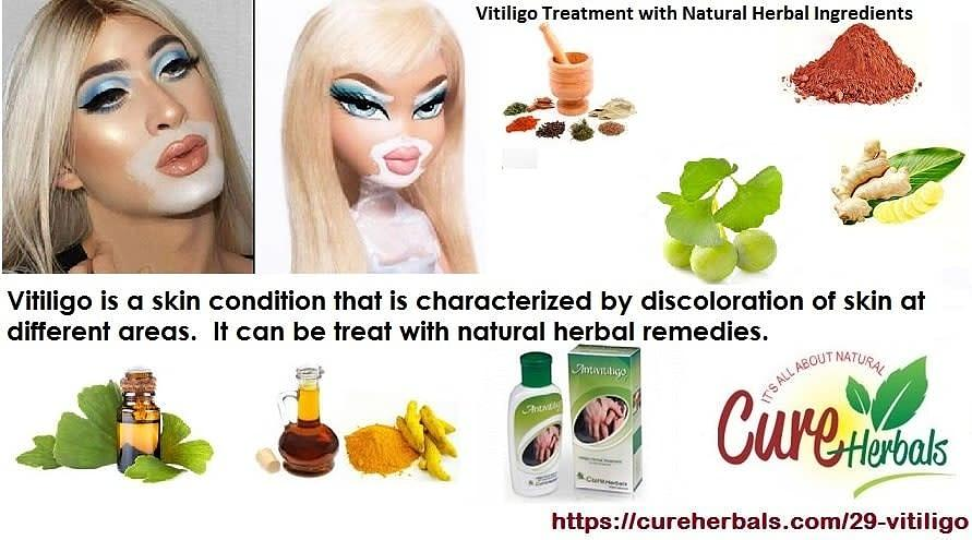 Vitiligo And Its Natural Herbal Treatment Photograph By Cure Herbals