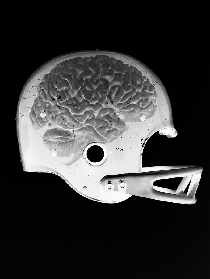 X-ray Image Of A Brain In A Football Photograph by Chris Parsons