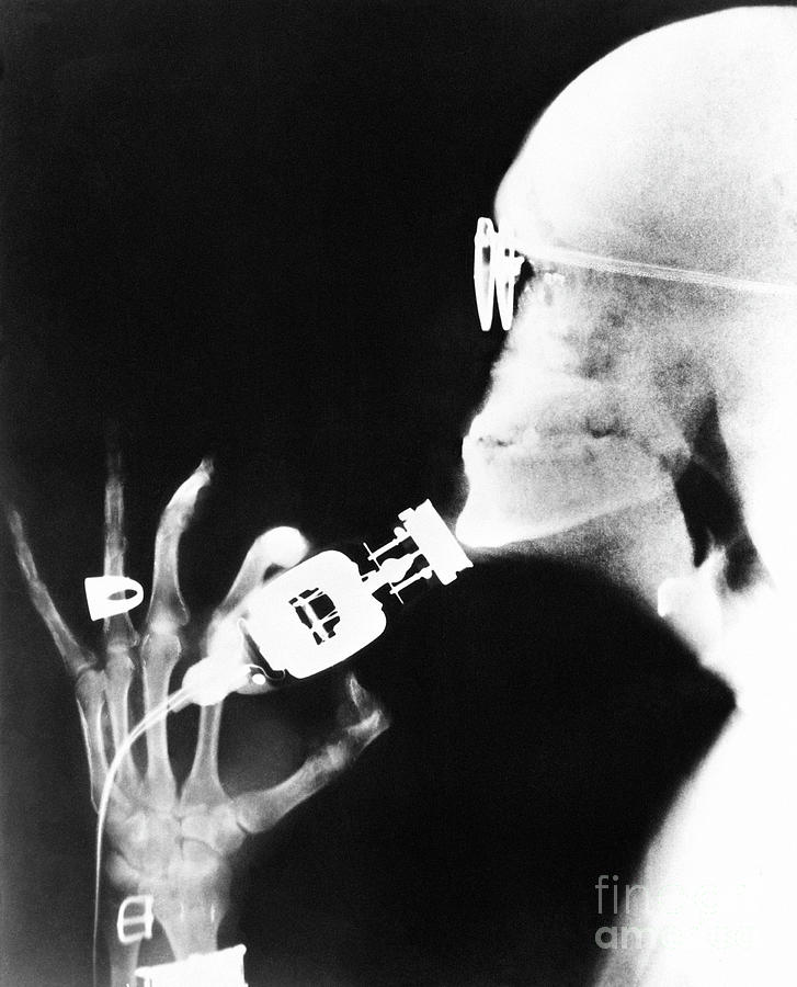 X-ray Of Man Shaving With Electric Razor Photograph by Bettmann