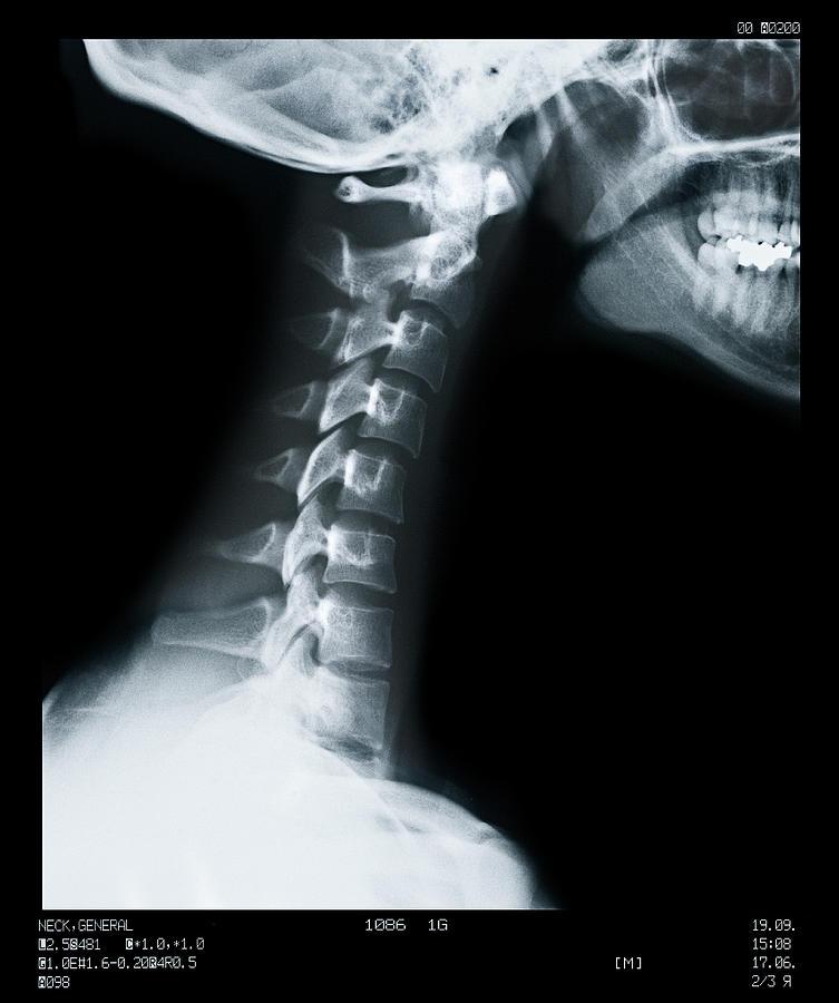 X Ray Of Neck Vertebrae Photograph by Anthony Bradshaw