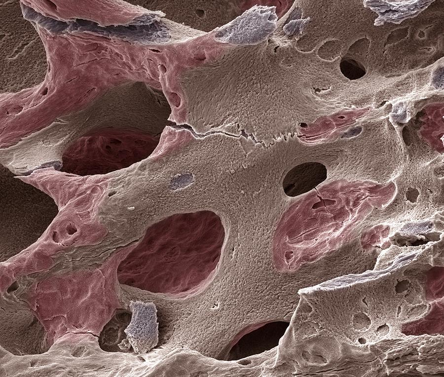 Scanning electron micrograph (SEM) of human bone, osteoporosis Photograph by Science Photo Library - STEVE GSCHMEISSNER.