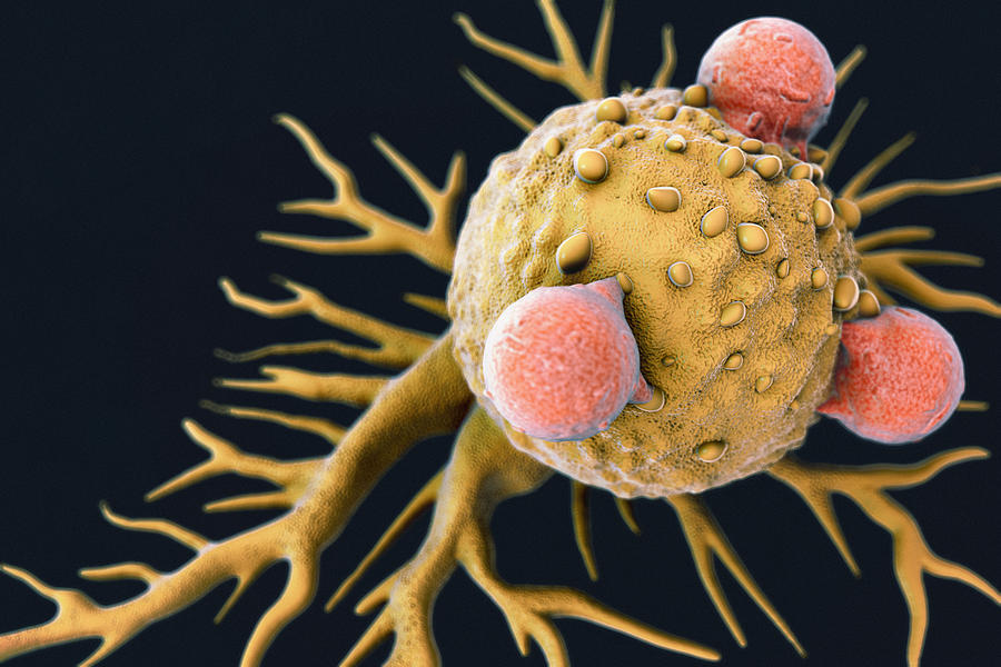 T Lymphocytes and Cancer Cell Photograph by Luismmolina
