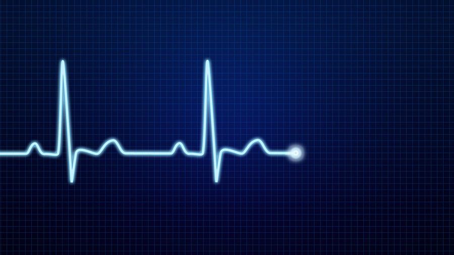 EKG Pulse Waveform Photograph by Kahramaninsan