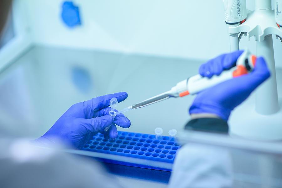 Genetic test Photograph by Cristobal Marambio