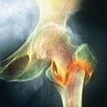 Coloured X-ray Of Femur Fracture In Osteoporosis by Medical Photo Nhs Lothian