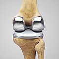 Knee Replacement by Science Picture Co