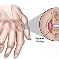 Rheumatoid Arthritis by Spencer Sutton