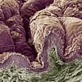Skin Tissue, Sem by Steve Gschmeissner