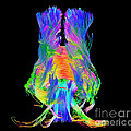 Brain Fiber Tracts, Dti Scan by Living Art Enterprises