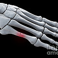 Broken Metatarsal by Science Picture Co