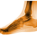Foot by Medical Body Scans