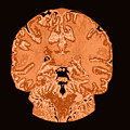 Coronal View Mri Of Normal Brain by Medical Body Scans