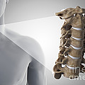 Cervical Vertebrae by Science Picture Co