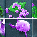 Cancer Cell Death Sequence, Sem by Science Source