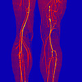 Atherosclerosis, Ct Angiogram by Living Art Enterprises