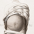 Cesarean Section, Incisions by Wellcome Images
