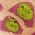 Chondrocytes, Tem by Don W. Fawcett