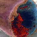 Coloured Sem Of A Blood Clot In Coronary Artery by Professor P.m. Motta, G. Macchiarelli, S.a Nottola