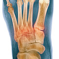 Crushed Broken Foot, X-ray by