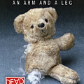 Dead Ted Arm And Leg by Tim Nyberg