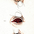 Eye Inflammations, Historical by Wellcome Images