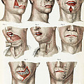 Facial Surgery, Illustration, 1846 by Wellcome Images