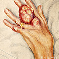 Left Hand With Tophus From Chronic Gout by Wellcome Images