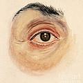 Melanoma Of Iris, Medical Illustration by Wellcome Images