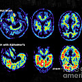 Normal And Alzheimer Brains, Pet Scans by Science Source
