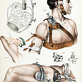 Operative Surgery, Illustration, 1846 by Wellcome Images