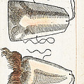 Prosthetic Noses, Ambroise Pare, 1561 by Wellcome Images