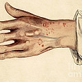 Psoriasis Guttata, Illustration, 1887 by Wellcome Images