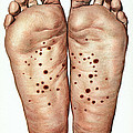 Psoriasis Of Feet, Illustration by Wellcome Images