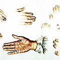 Psoriasis, Syphilis, Onychomycosis by Wellcome Images