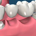 Restorations For Missing Teeth Implants, Dentures And Bridges by Rafael Chuapoco