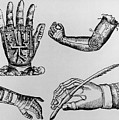 Selection Of 16th Century Artificial Arms & Hands. by Dr Jeremy Burgess.