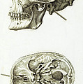Skull With Head Wound, Illustration by Wellcome Images