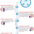 Symptoms Of Alzheimer's Disease? by Finda TopDoc
